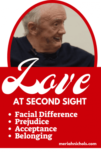 """Love at Second Sight"" Short Movie About Facial Difference and Love"