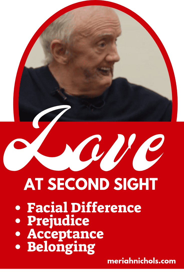 """""""Love at Second Sight"""" Short Movie About Facial Difference and Love"""