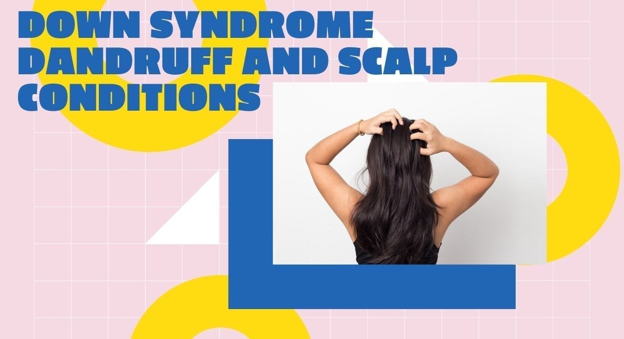 Down syndrome Dandruff and Scalp Conditions: [image description: pink background with yellow, white and blue geometric shapes upon which is a photo of a person with long hair and their arms up as if scratching their head. blue text reads,