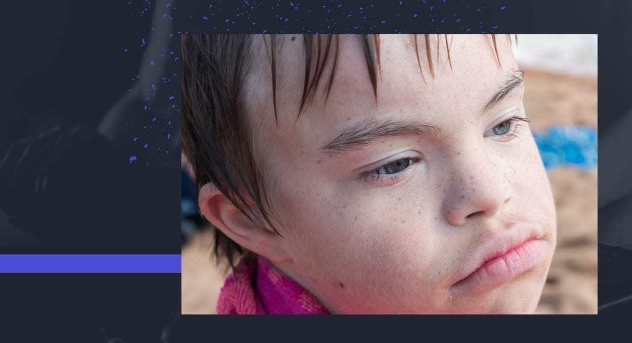 image of a sad looking boy with Down syndrome - he is looking off in the distance