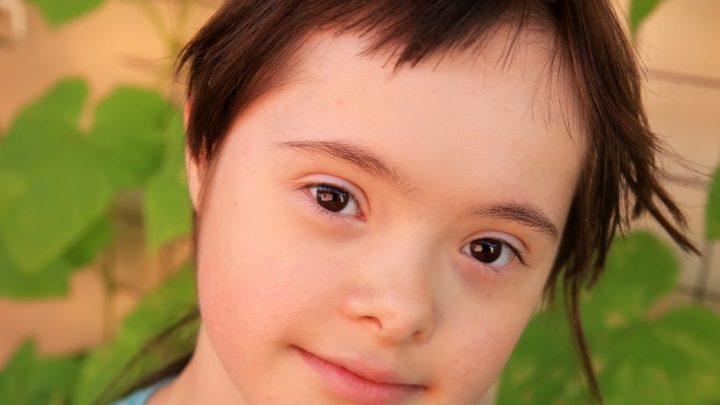Do People With Down Syndrome Feel Pain Differently?